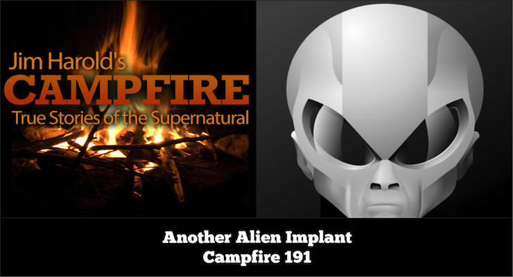 Another Alien Implant – Campfire 191