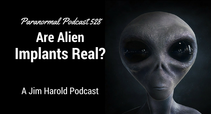 Are Alien Implants Real – Paranormal Podcast 528